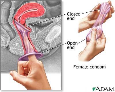 female-condom.jpg